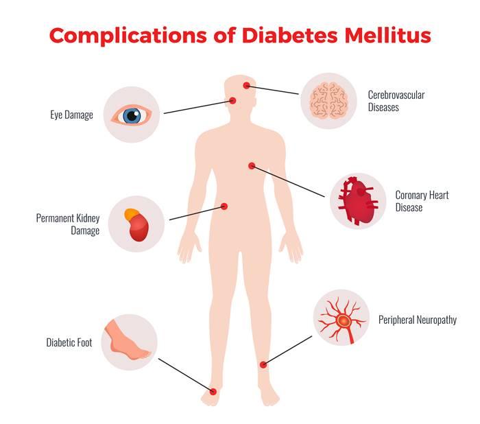 komplikasi-diabetes